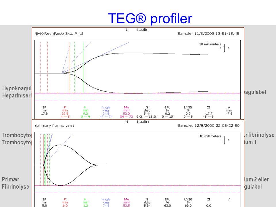 TEG® profiler Normal Hypokoagulabel Heparinisering Hyperkoagulabel