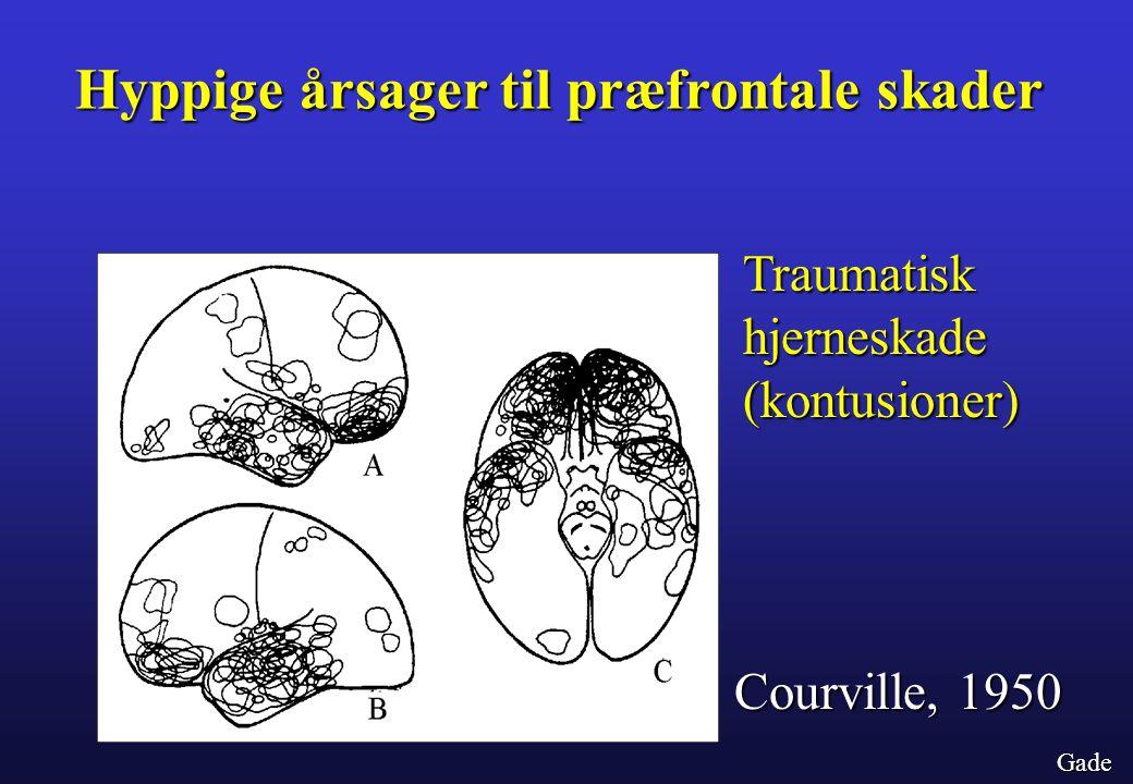 Hyppige årsager til præfrontale skader