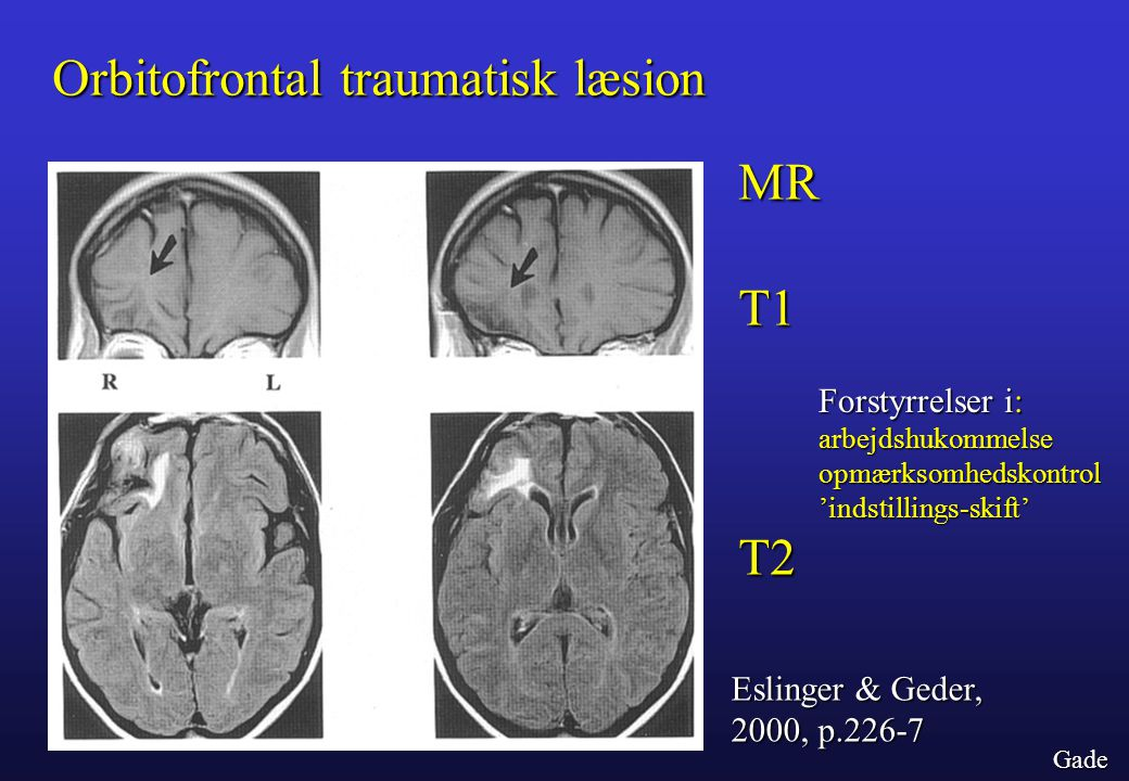 Orbitofrontal traumatisk læsion