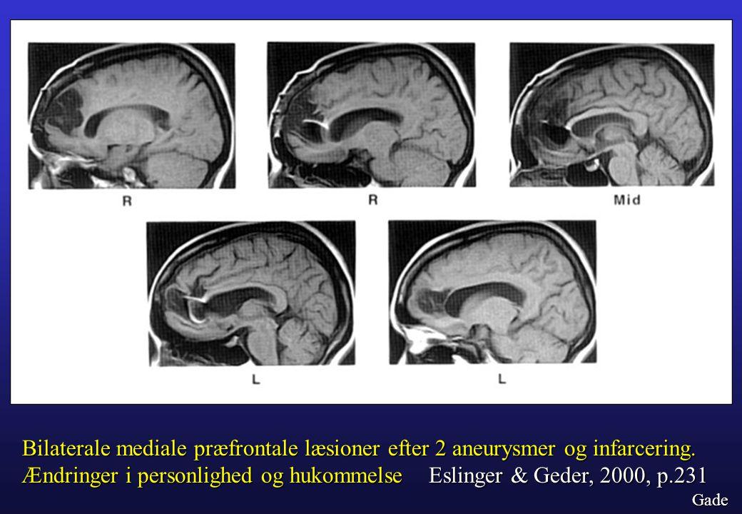 Ændringer i personlighed og hukommelse Eslinger & Geder, 2000, p.231
