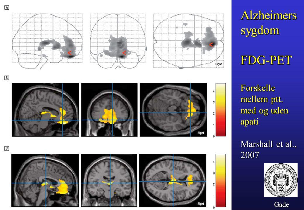 Alzheimers sygdom FDG-PET Forskelle mellem ptt. med og uden apati