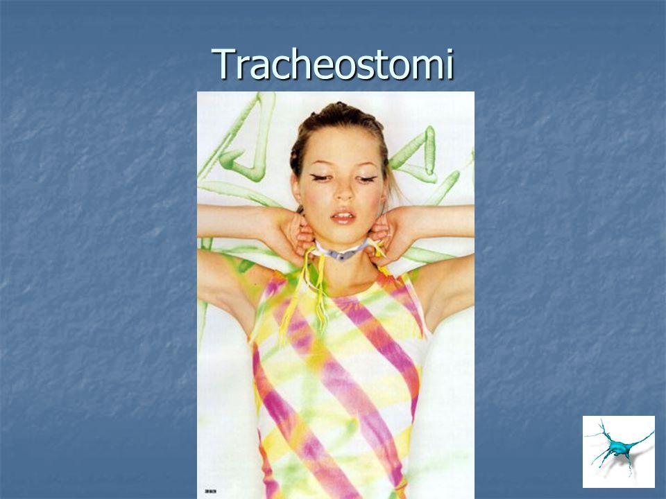 Tracheostomi