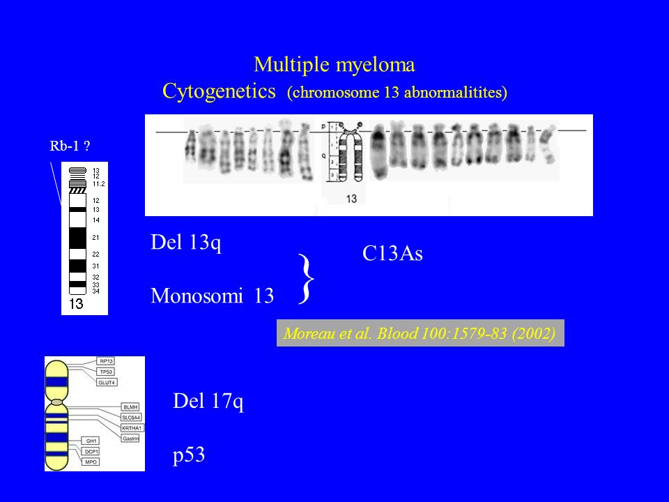 Multiple myeloma Cytogenetics (chromosome 13 abnormalitites)