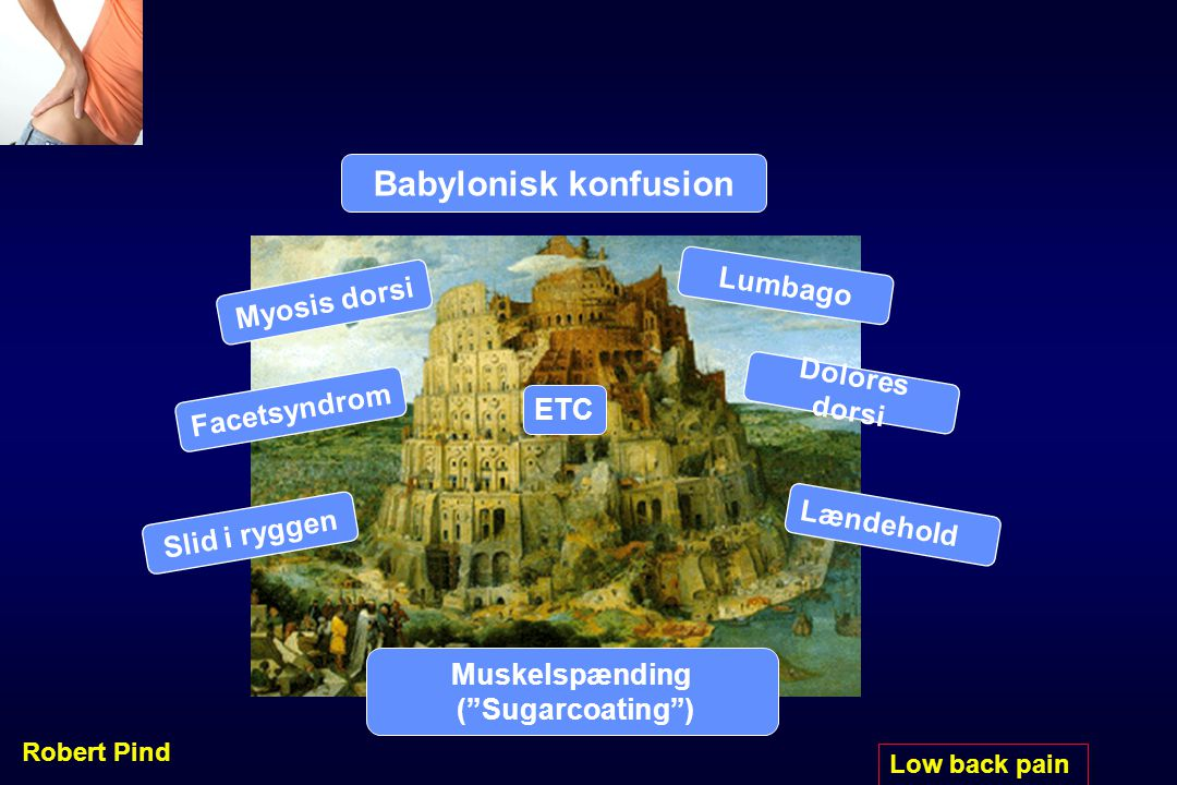 Babylonisk konfusion Lumbago Myosis dorsi Dolores dorsi Facetsyndrom