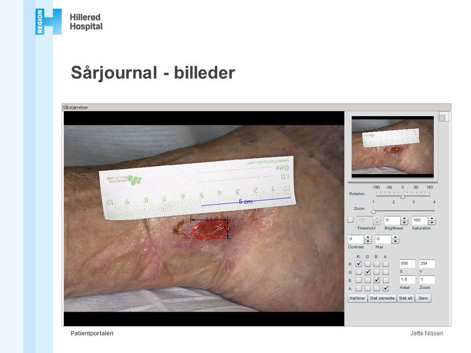 Sårjournal - billeder Patientportalen Jette Nissen