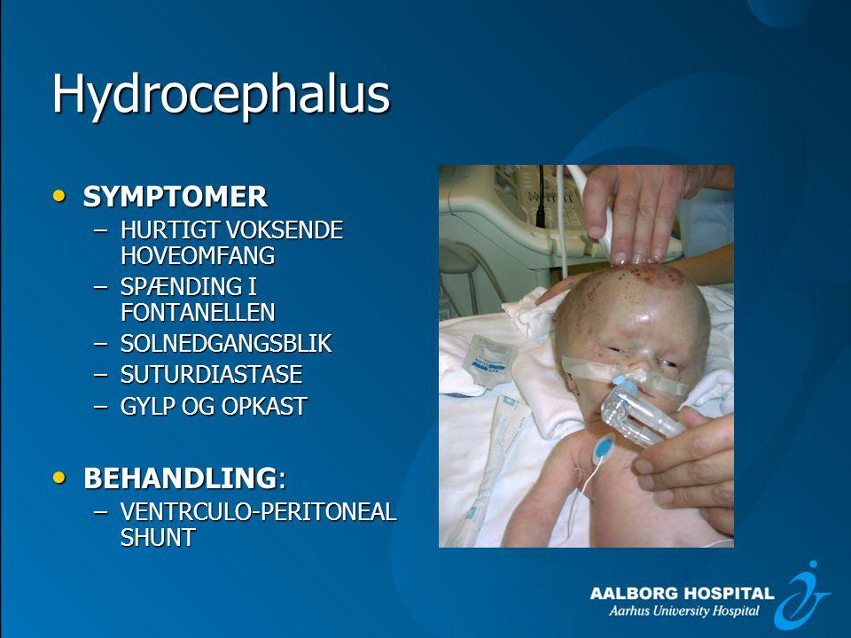 Hydrocephalus SYMPTOMER BEHANDLING: HURTIGT VOKSENDE HOVEOMFANG