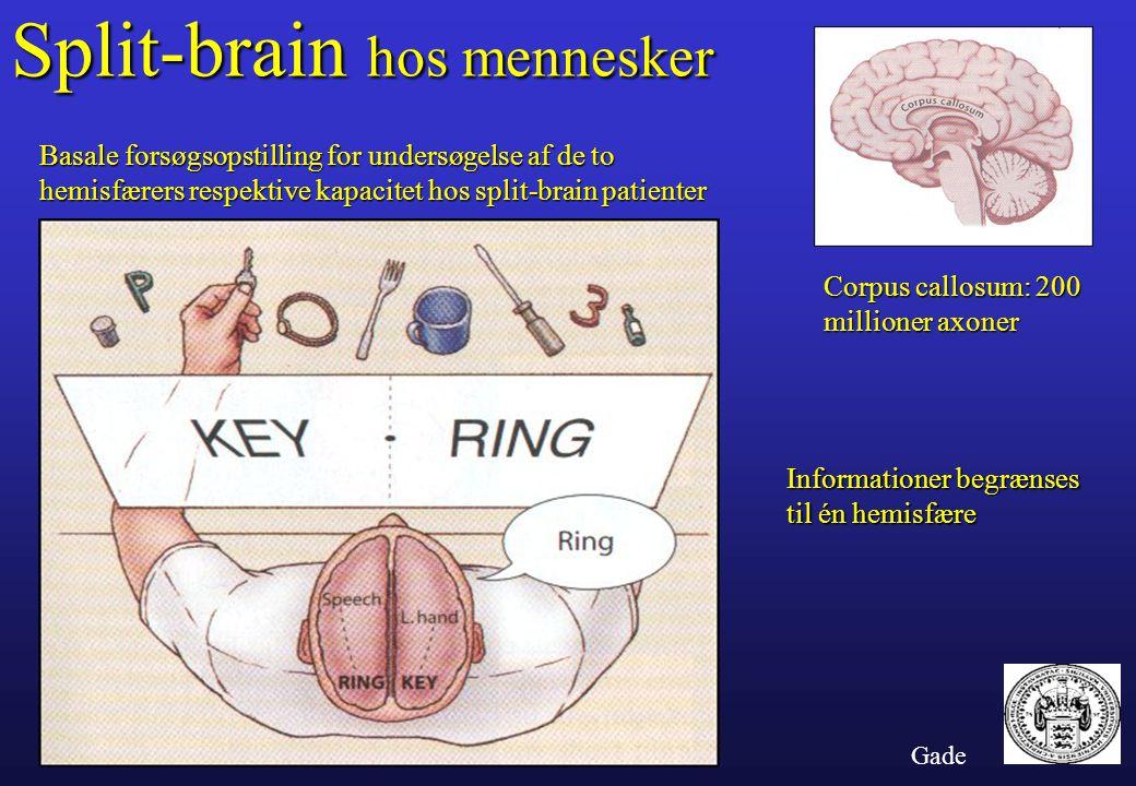 Split-brain hos mennesker