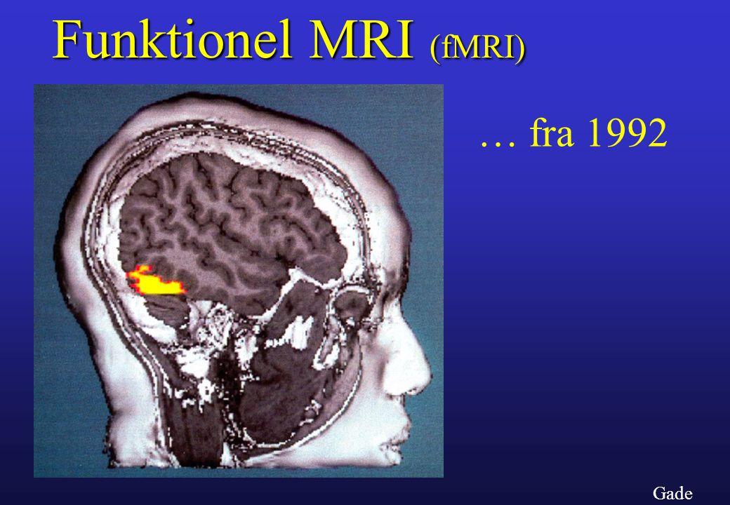 Funktionel MRI (fMRI) … fra 1992 Gade