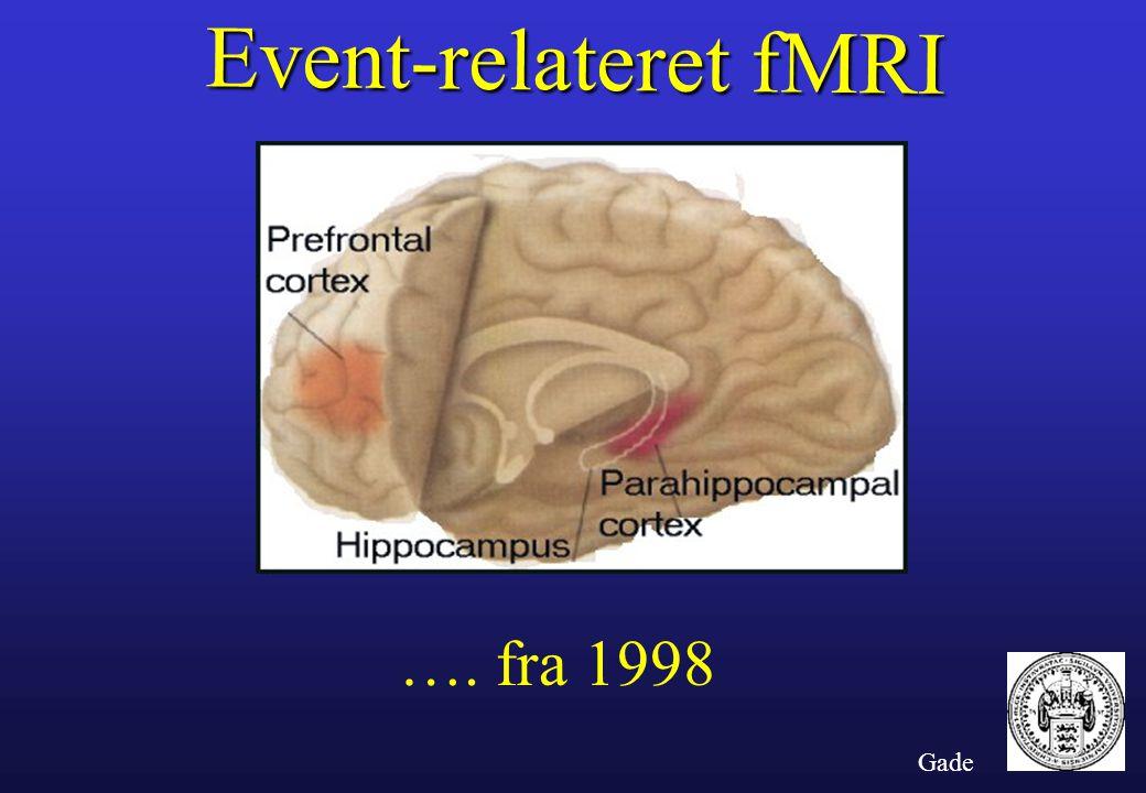 Event-relateret fMRI …. fra 1998 Gade