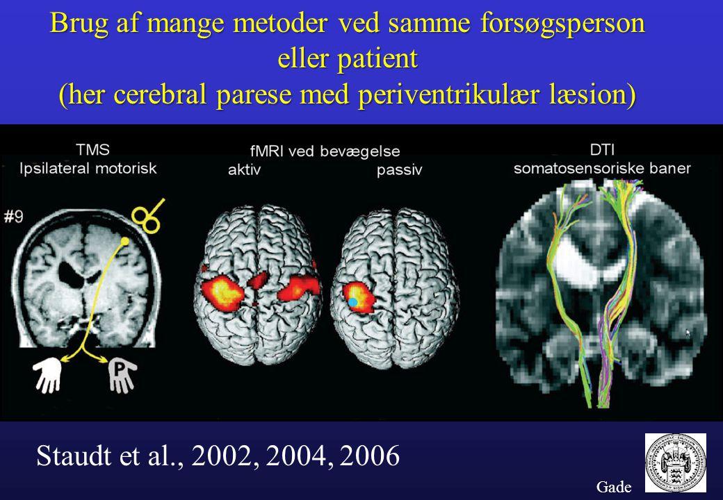 Brug af mange metoder ved samme forsøgsperson eller patient (her cerebral parese med periventrikulær læsion)