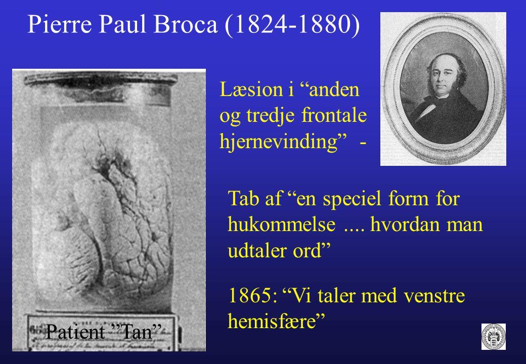 Pierre Paul Broca (1824-1880) Læsion i anden og tredje frontale