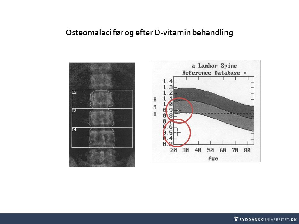 Osteomalaci før og efter D-vitamin behandling