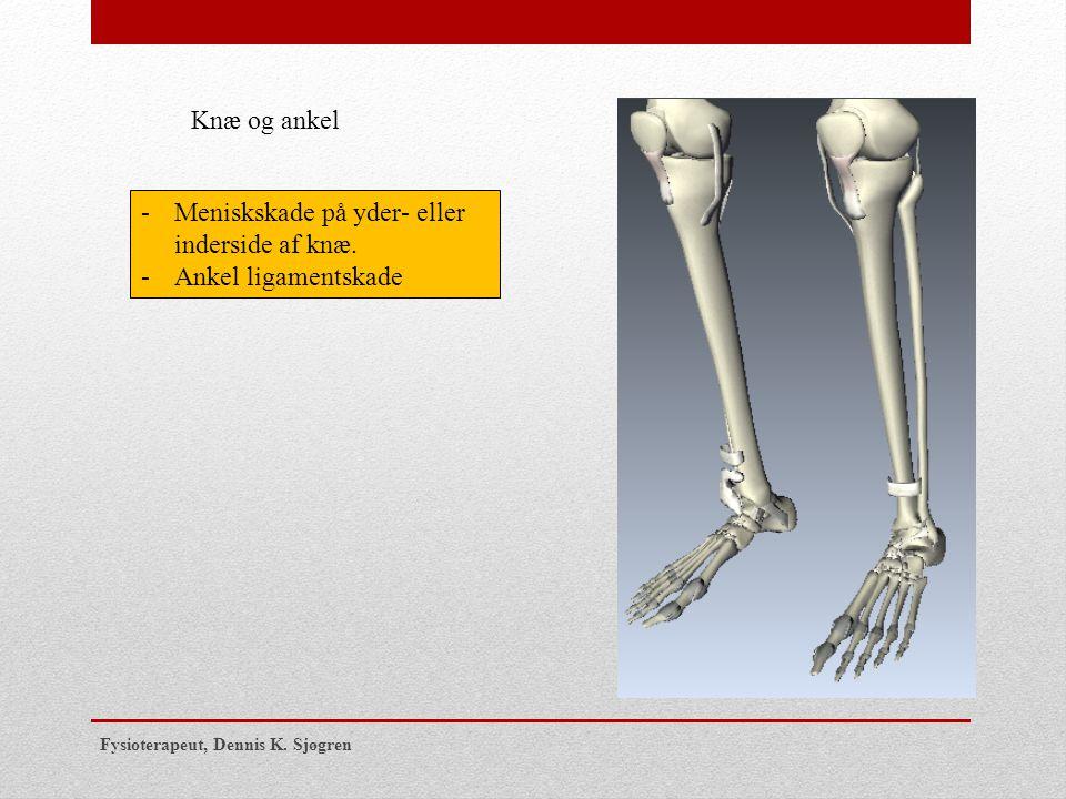 Meniskskade på yder- eller inderside af knæ. Ankel ligamentskade