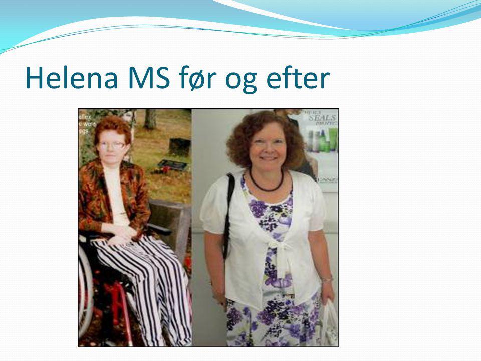 Helena MS før og efter