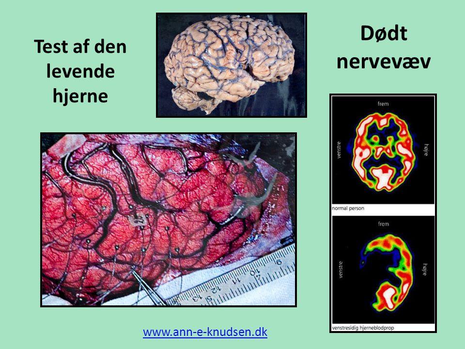 Test af den levende hjerne