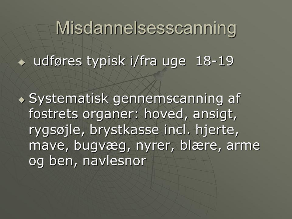 Misdannelsesscanning
