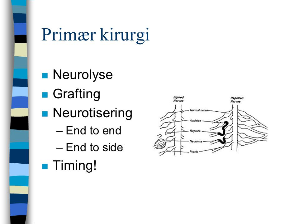Primær kirurgi Neurolyse Grafting Neurotisering Timing! End to end