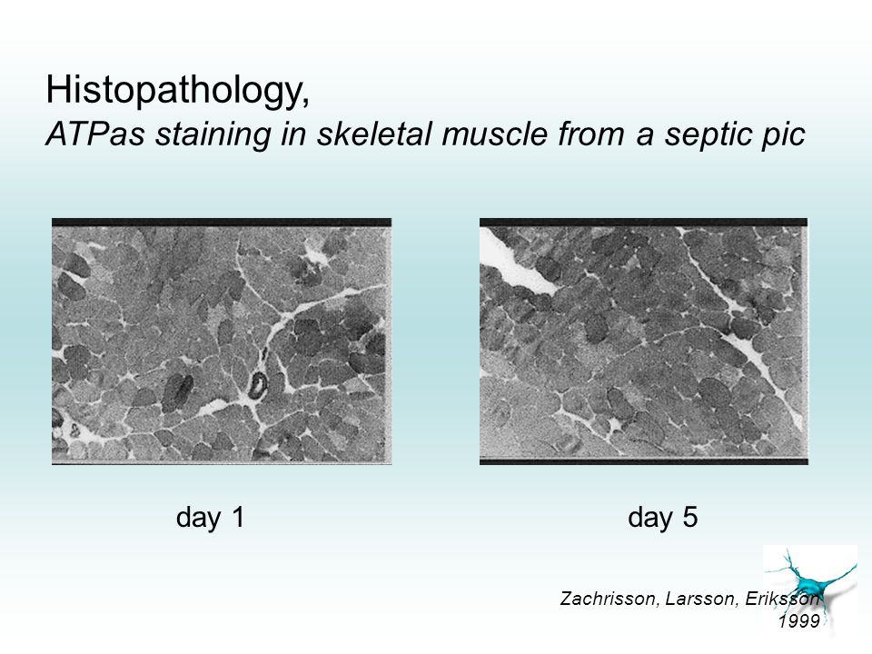 Histopathology, ATPas staining in skeletal muscle from a septic pic