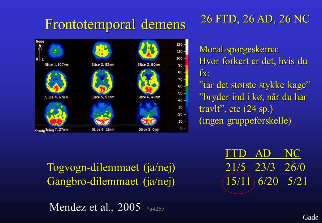 Frontotemporal demens