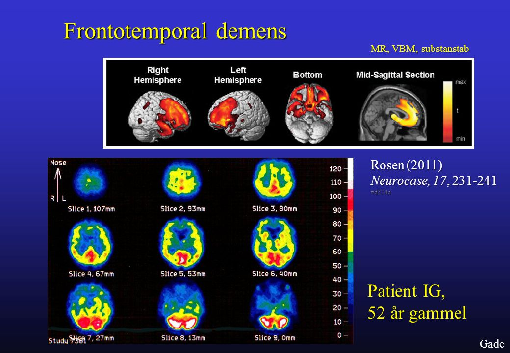 Frontotemporal demens