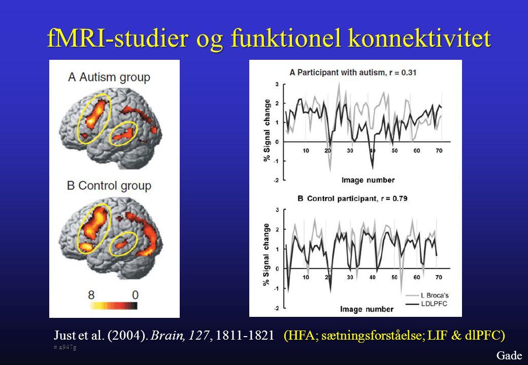 fMRI-studier og funktionel konnektivitet