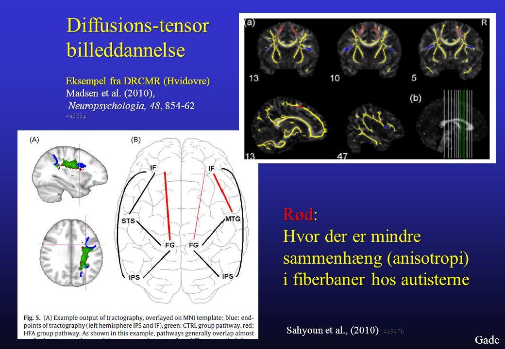 Diffusions-tensor billeddannelse
