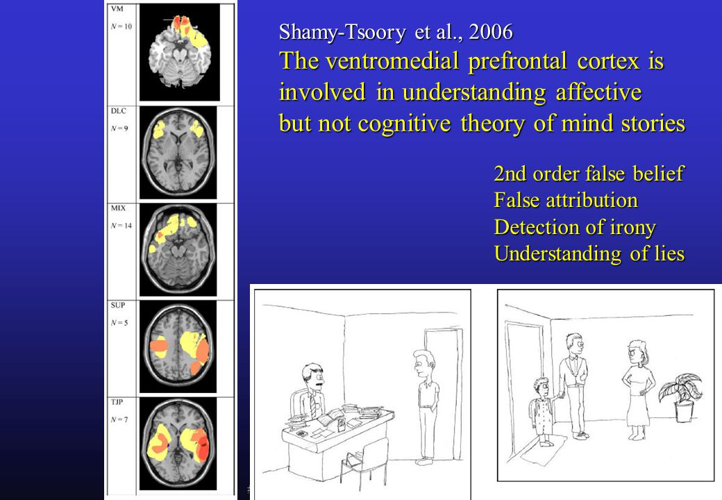 Shamy-Tsoory et al., 2006 The ventromedial prefrontal cortex is involved in understanding affective but not cognitive theory of mind stories.