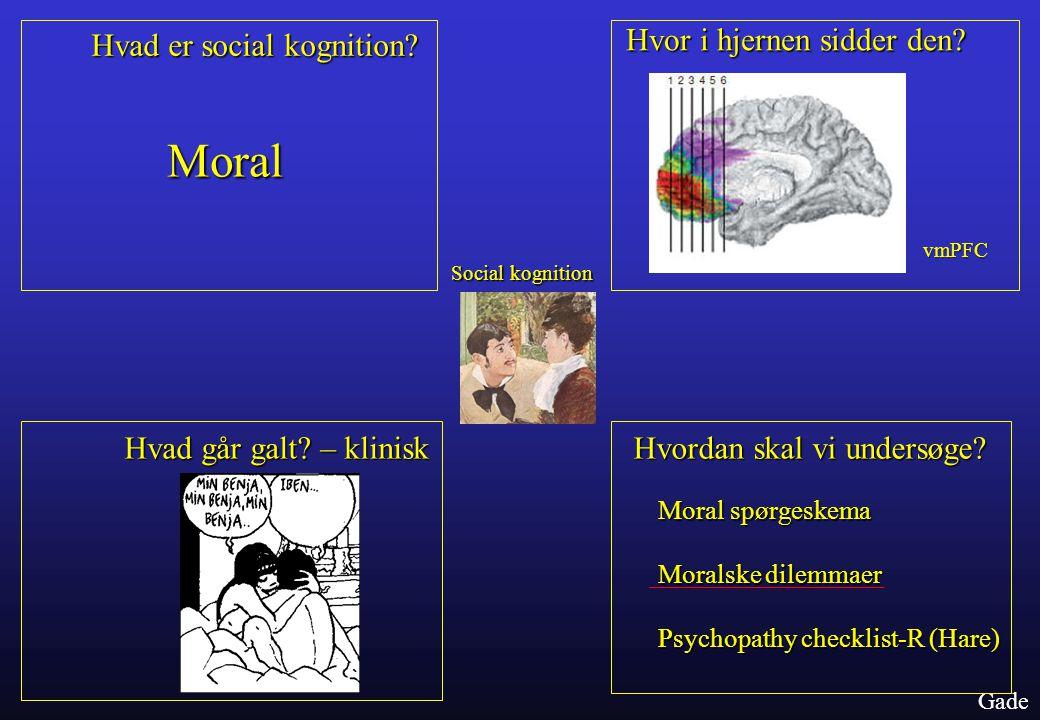 Moral Hvad er social kognition Hvor i hjernen sidder den