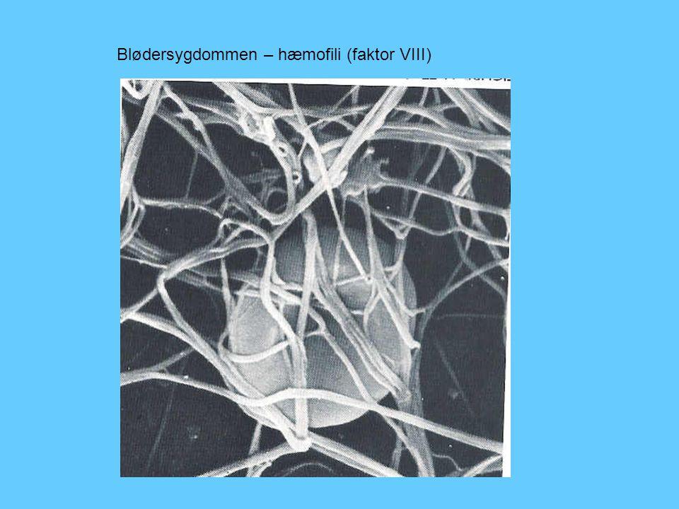 Blødersygdommen – hæmofili (faktor VIII)