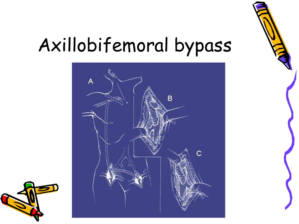 Axillobifemoral bypass