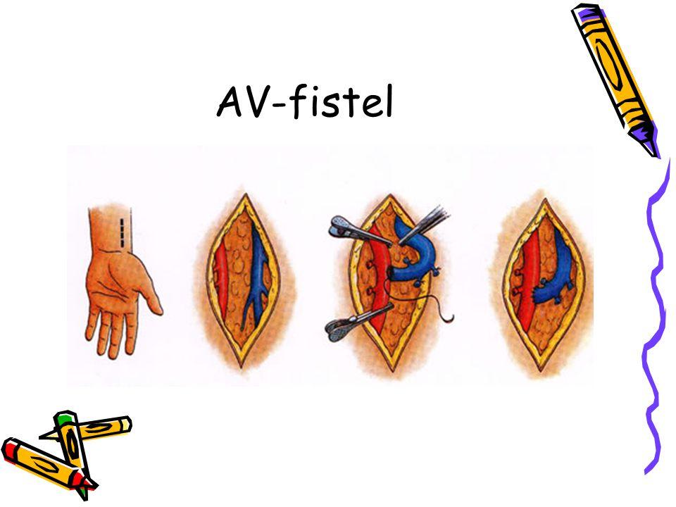 AV-fistel