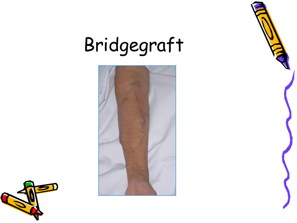 Bridgegraft