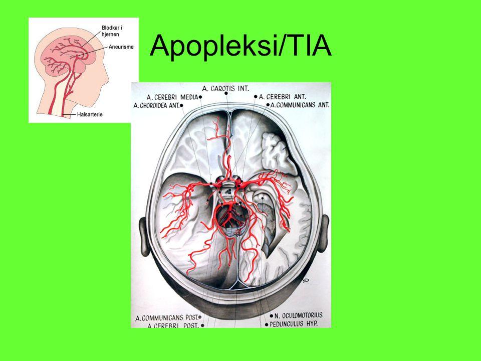 Apopleksi/TIA