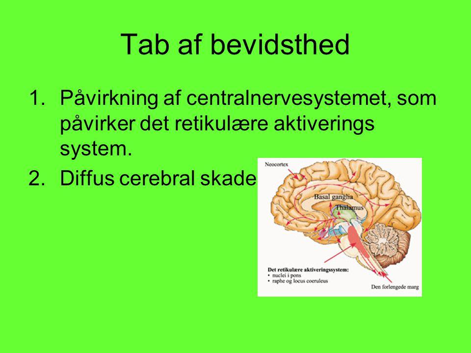 Tab af bevidsthed Påvirkning af centralnervesystemet, som påvirker det retikulære aktiverings system.