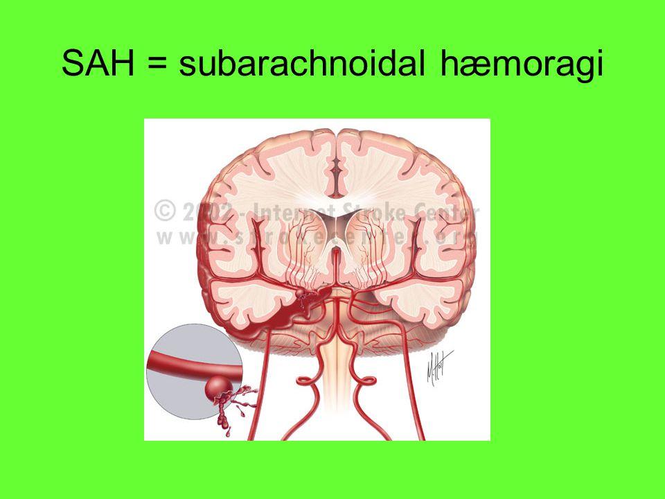 SAH = subarachnoidal hæmoragi
