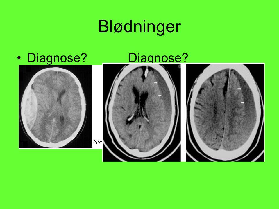 Blødninger Diagnose Diagnose