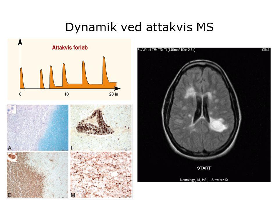 Dynamik ved attakvis MS