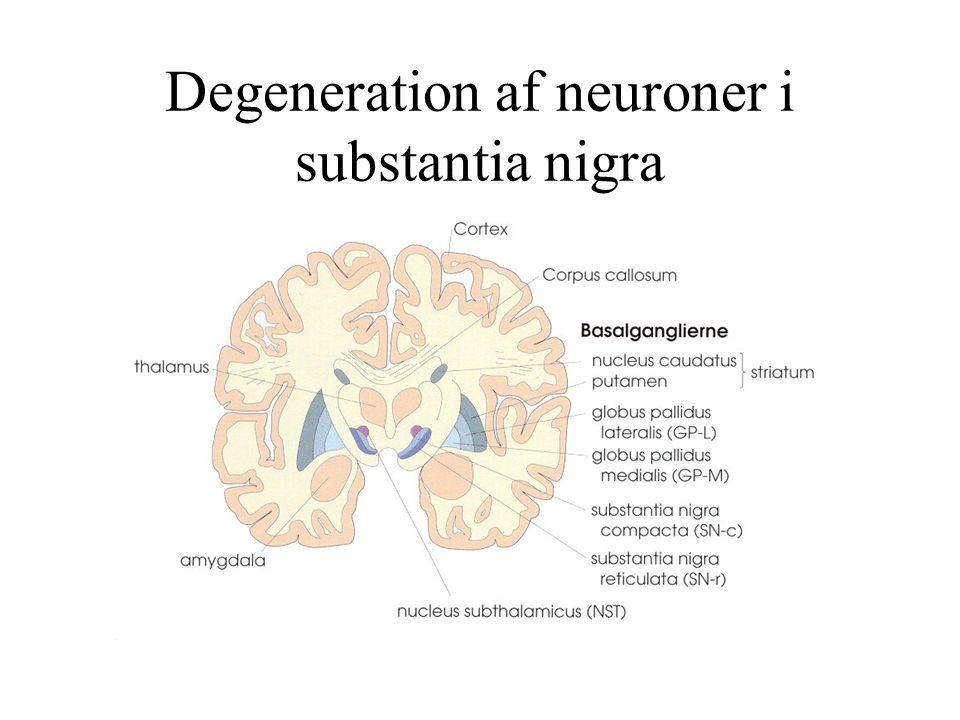 Degeneration af neuroner i substantia nigra