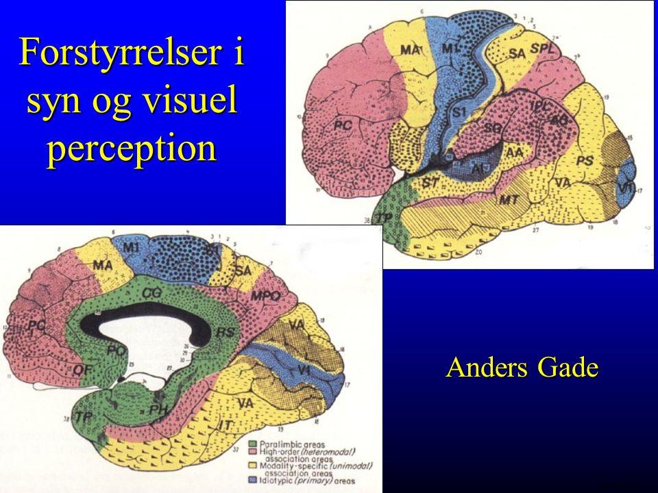 Forstyrrelser i syn og visuel perception