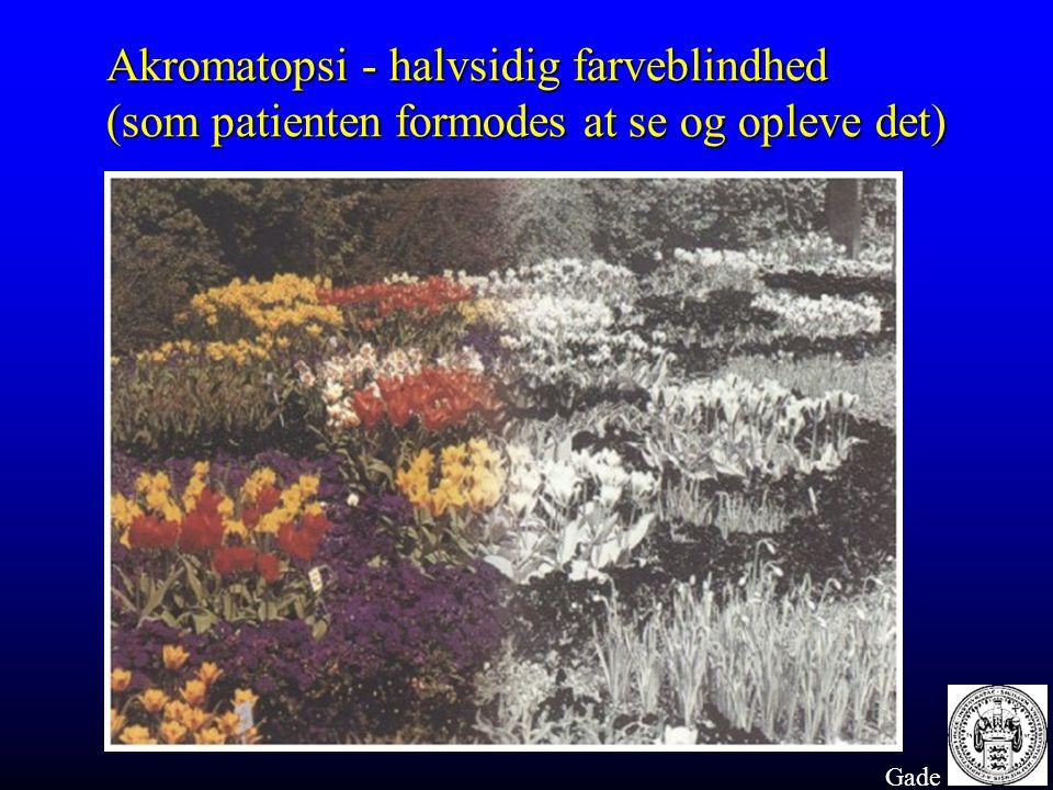 Akromatopsi - halvsidig farveblindhed
