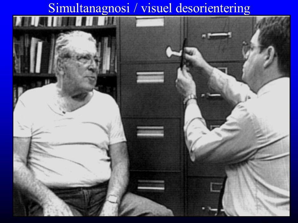 Simultanagnosi / visuel desorientering