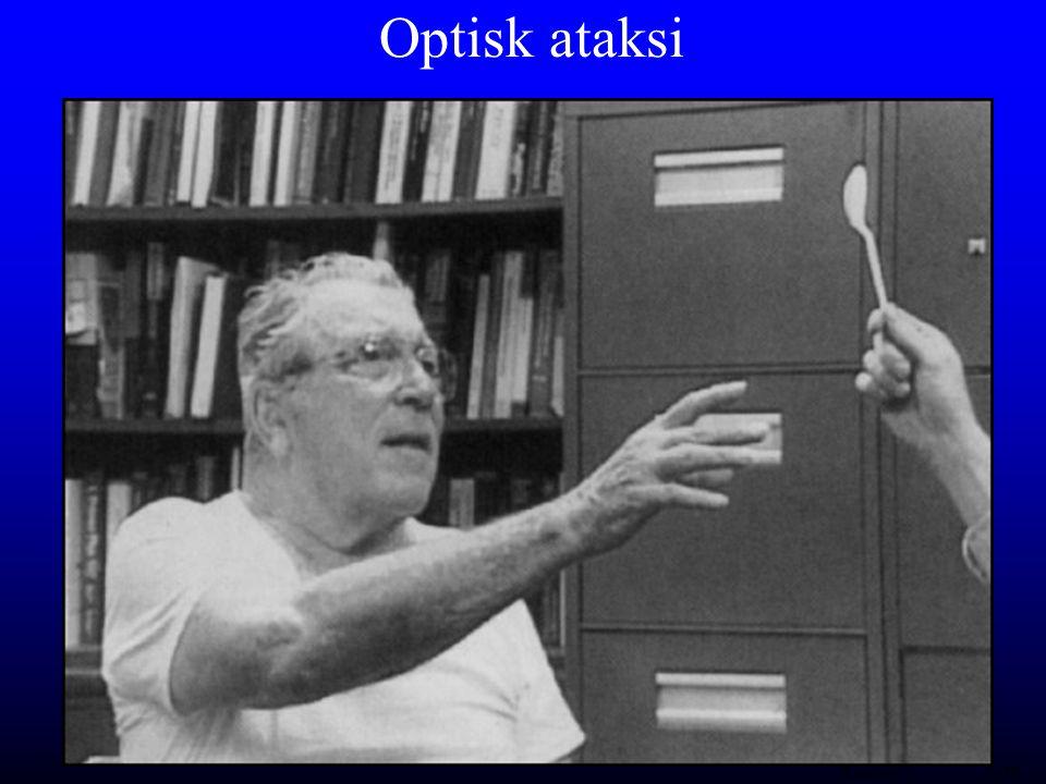Optisk ataksi (Rafal 1997) hu/RH