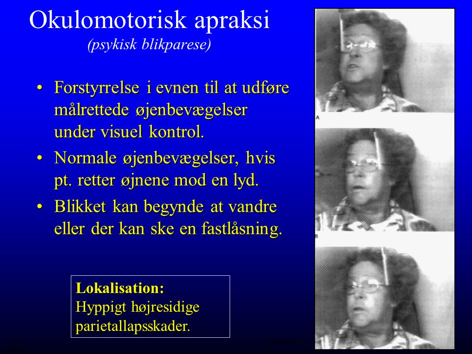 Okulomotorisk apraksi (psykisk blikparese)