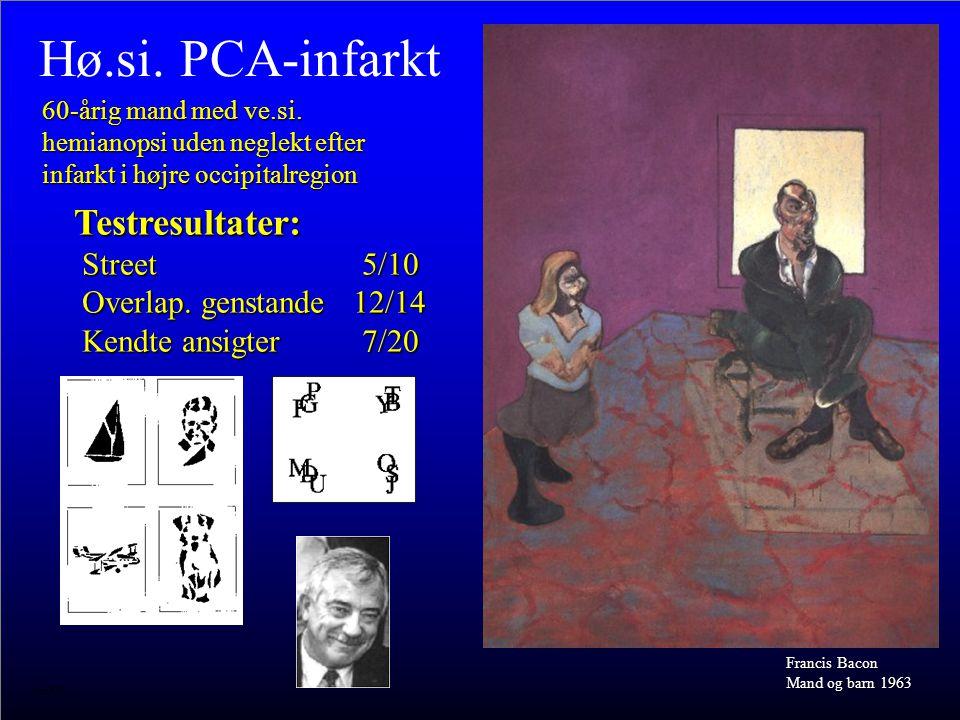 Hø.si. PCA-infarkt 60-årig mand med ve.si. hemianopsi uden neglekt efter infarkt i højre occipitalregion.
