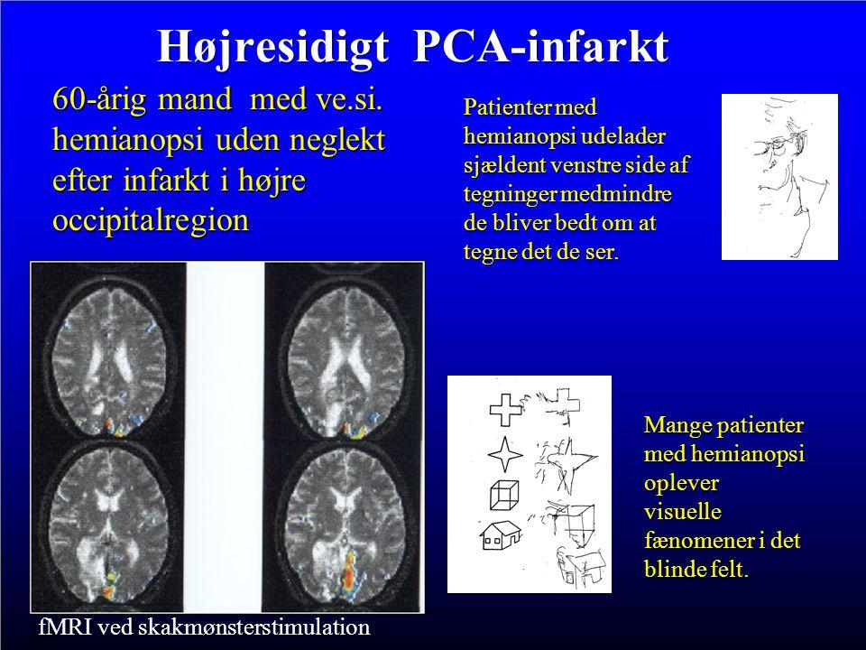 Højresidigt PCA-infarkt