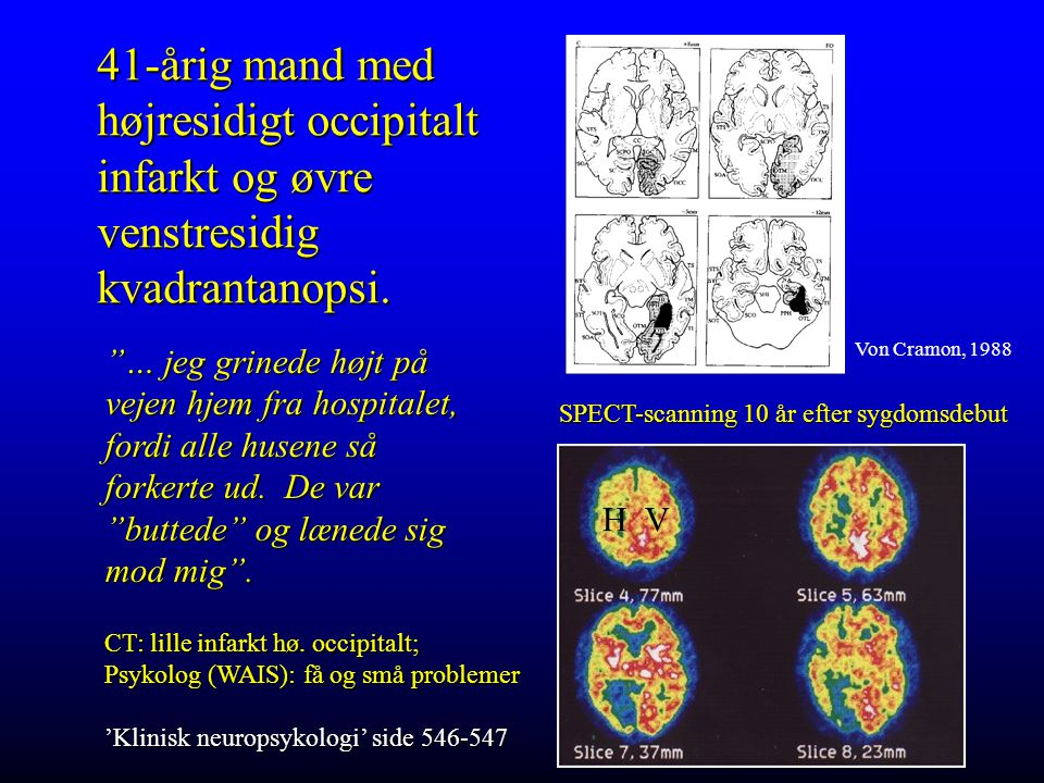 41-årig mand med højresidigt occipitalt infarkt og øvre venstresidig kvadrantanopsi.