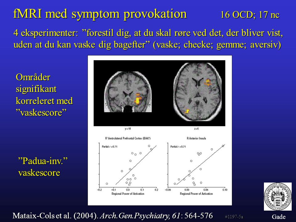 fMRI med symptom provokation 16 OCD; 17 nc