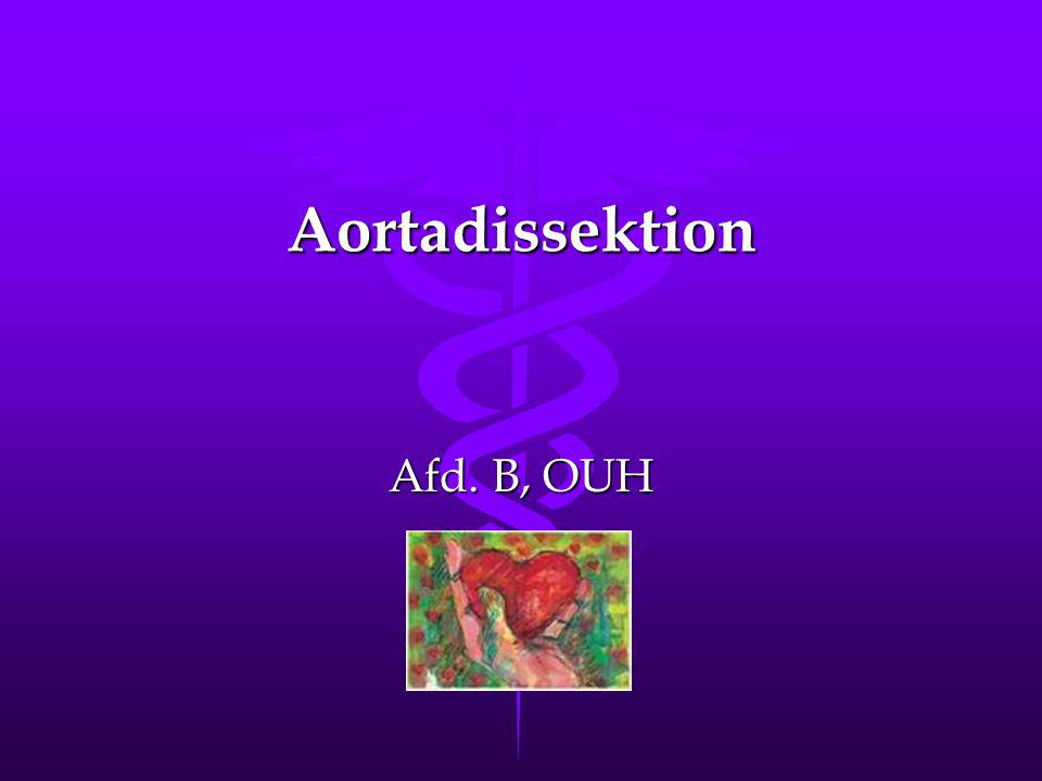 Aortadissektion Afd. B, OUH
