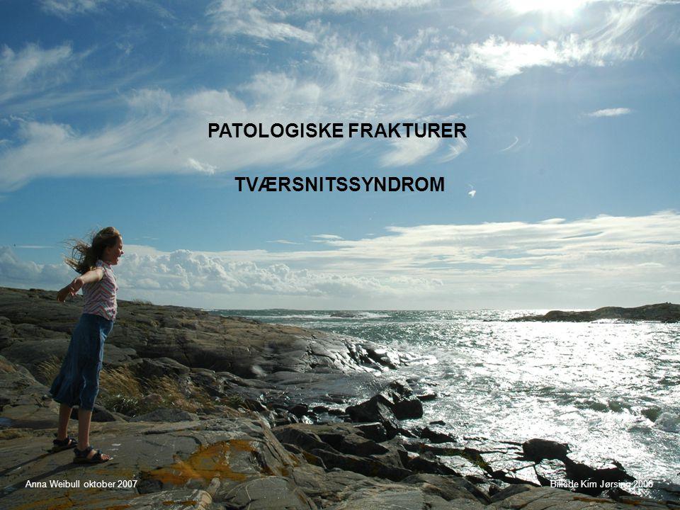 PATOLOGISKE FRAKTURER