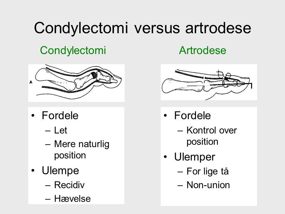 Condylectomi versus artrodese